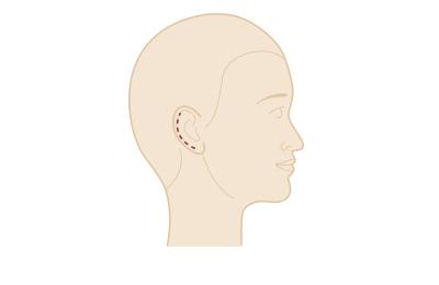Ohrenkorrektur - Narbenverlauf