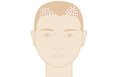 Eigenbluttherapie bei Haarausfall