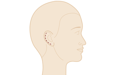 Ohrenkorrektur