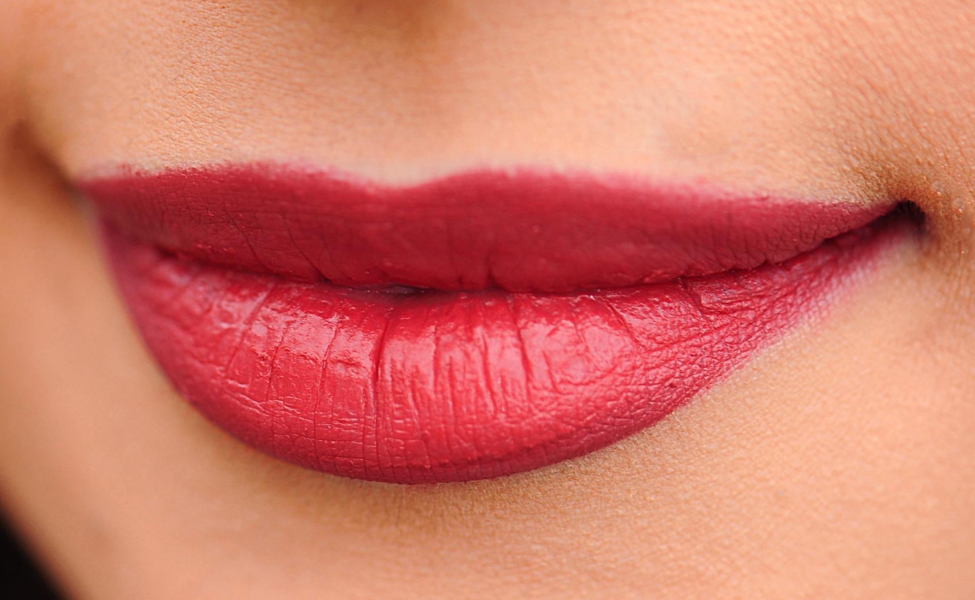 Lippen mit Hyaluronsäure-Fillern